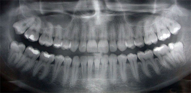 Routine & Dental Panoramic Digital X-rays