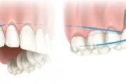 01162f324a0042943419675020b36823-implants-1